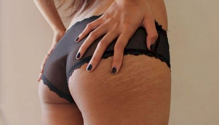 Home made remedies for stretch marks